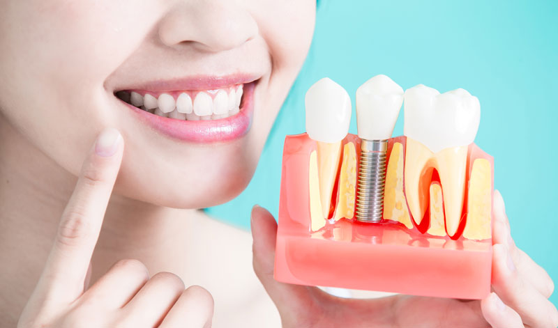 Dental Implant Treatment at Mornington Peninsula
