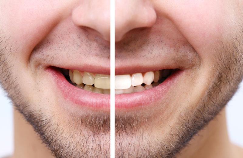 Teeth Whitening Treatment Mornington Peninsula