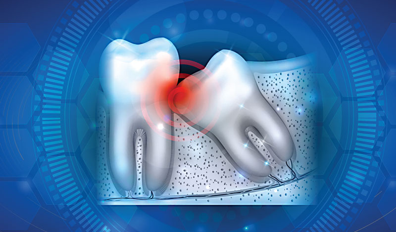 Wisdom Teeth Extraction Mornington Peninsula